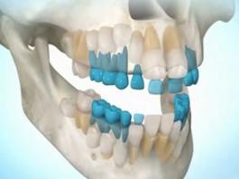 Невероятно! Теперь вырастить зубы станет возможным в любом возрасте
