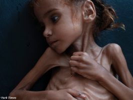 Умерла 7-летняя девочка, ставшая символом голода на богатом Ближнем Востоке