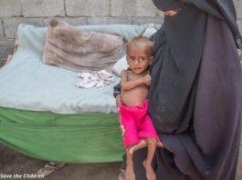 Голод в Йемене унёс жизни 85 000 детей. Почему весь мир молчит?!