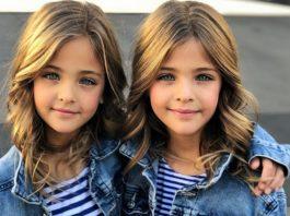 В 7 лет их назвали самыми красивыми близнецами. Вот как они выглядят сейчас