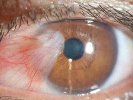Врачи предупреждают: это приводит к слепоте, развитию рака, диабета 2 типа, ожирения, болезни сердца и слабому иммунитету