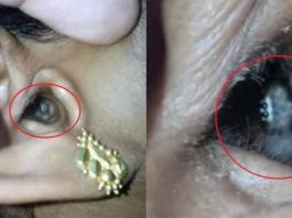 Женщина обратилась к врачу с головной болью, но то, что было у нее в ухе оказалось настоящим кошмаром